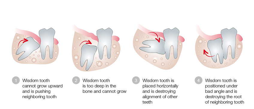Dr. Walker Wisdom Tooth
